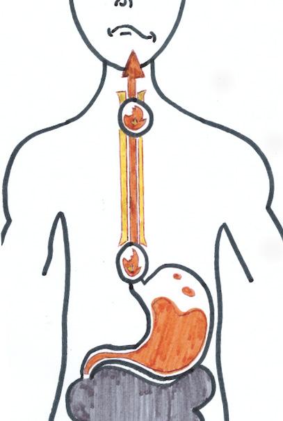 Jennifer Muller ostéopathe acidité gastrique
