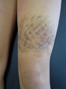 Jennifer Muller ostéopathe tape hématome